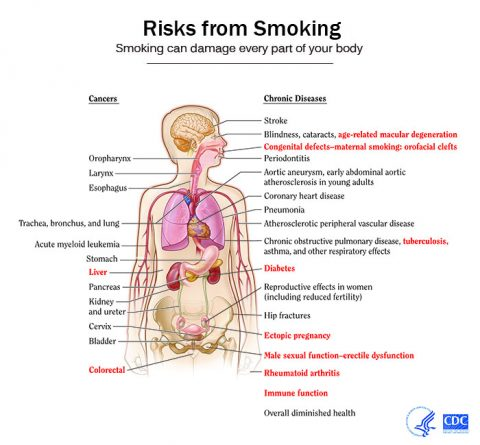 Risks of Smoking